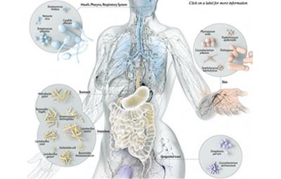 Mikroorganizmy zamieszkujące nasze ciało mają związek z chorobami zapalnymi stawów