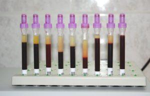 Badanie OB –ligatoryjne