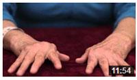 Ćwiczenia dłoni w Reumatoidalnym Zapaleniu Stawów