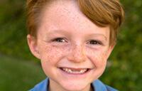 Problemy stomatologiczne u dzieci  z niedoborem wzrostu